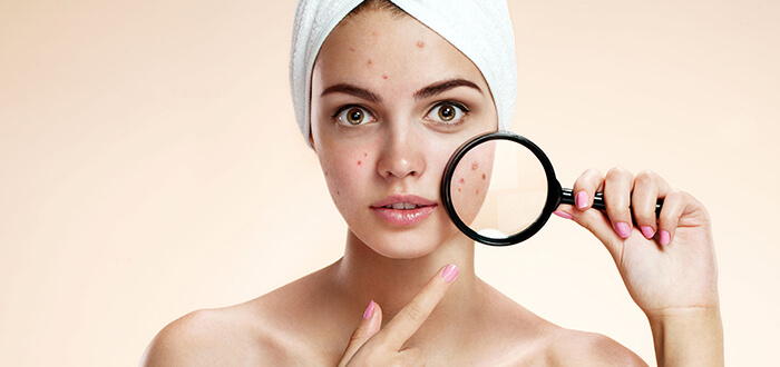 Take Care of Acne-Prone Skin